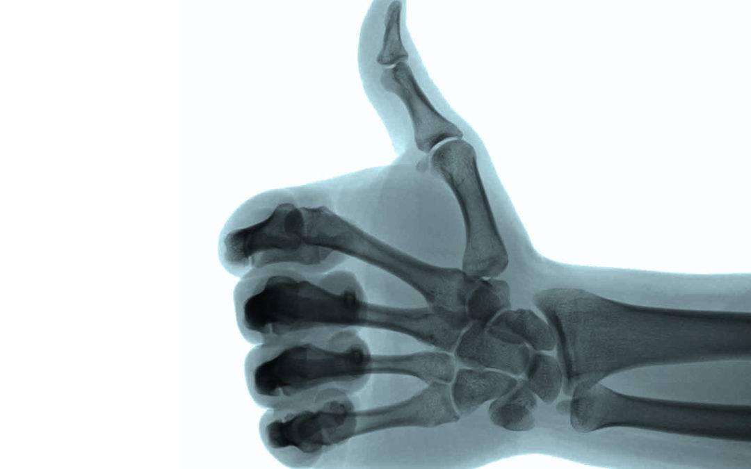 BETACRIN – Cuidado com a saúde dos ossos e prevenção da osteoporose